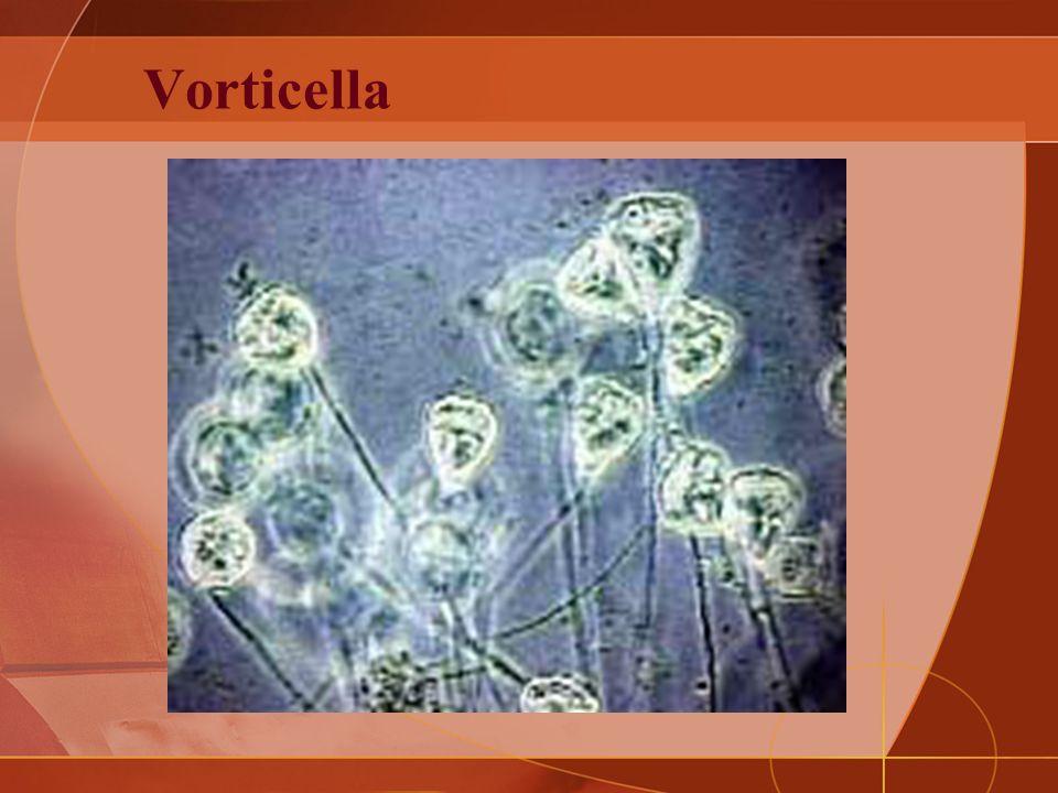 Vorticella