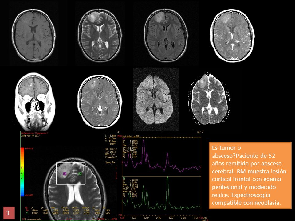 Es tumor o absceso. Paciente de 52 años remitido por absceso cerebral