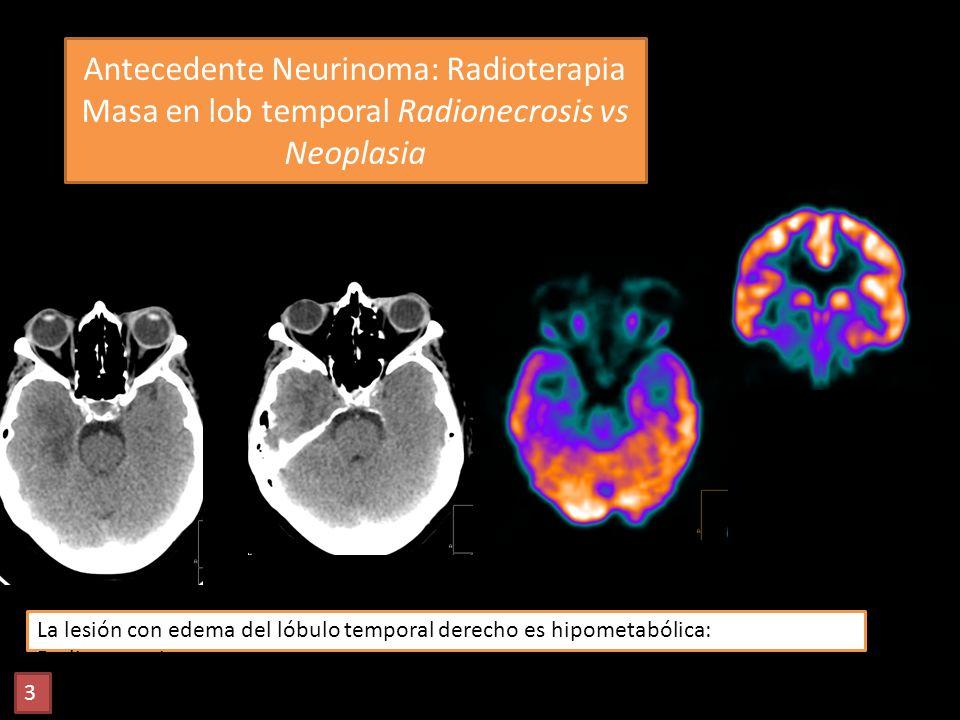 Antecedente Neurinoma: Radioterapia Masa en lob temporal Radionecrosis vs Neoplasia