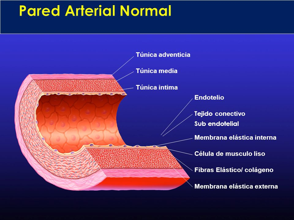 Pared Arterial Normal Túnica adventicia Túnica media Túnica intima