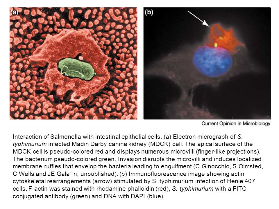 Interaction of Salmonella with intestinal epithelial cells
