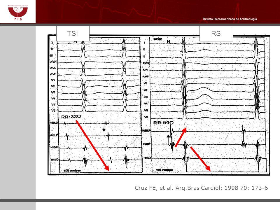 TSI RS Cruz FE, et al. Arq.Bras Cardiol; 1998 70: 173-6