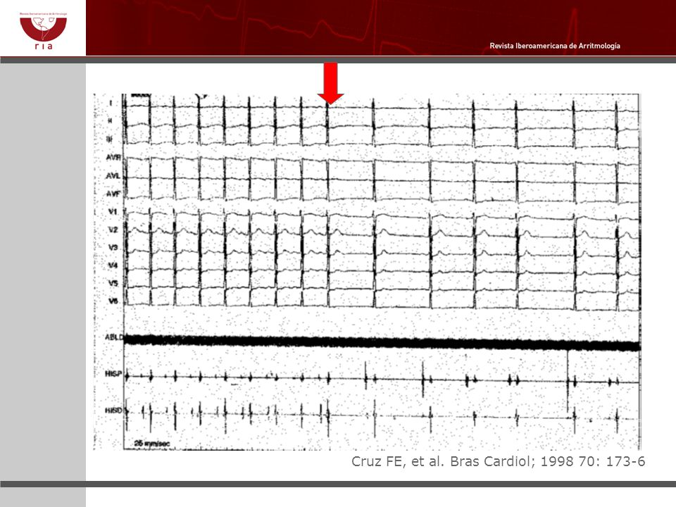 Reduccion de ciclos cardiacos tras aplicación de RF