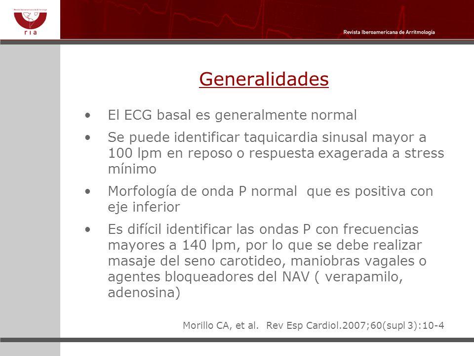 Generalidades El ECG basal es generalmente normal