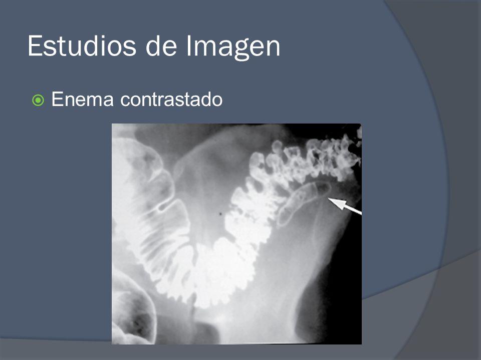Estudios de Imagen Enema contrastado