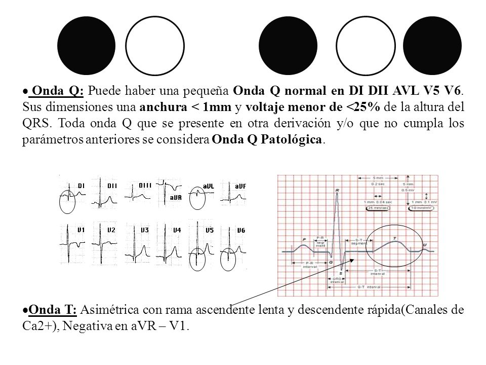 Onda Q: Puede haber una pequeña Onda Q normal en DI DII AVL V5 V6
