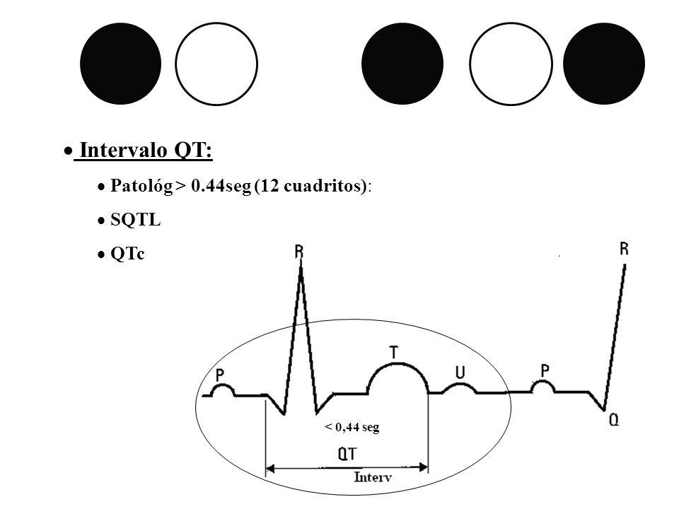 Intervalo QT: Patológ > 0.44seg (12 cuadritos): SQTL QTc