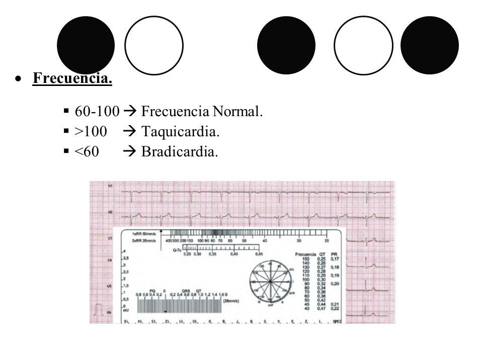 Frecuencia. 60-100  Frecuencia Normal. >100  Taquicardia.