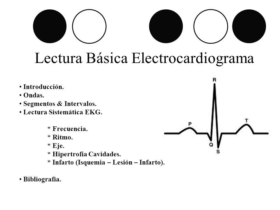 Lectura Básica Electrocardiograma