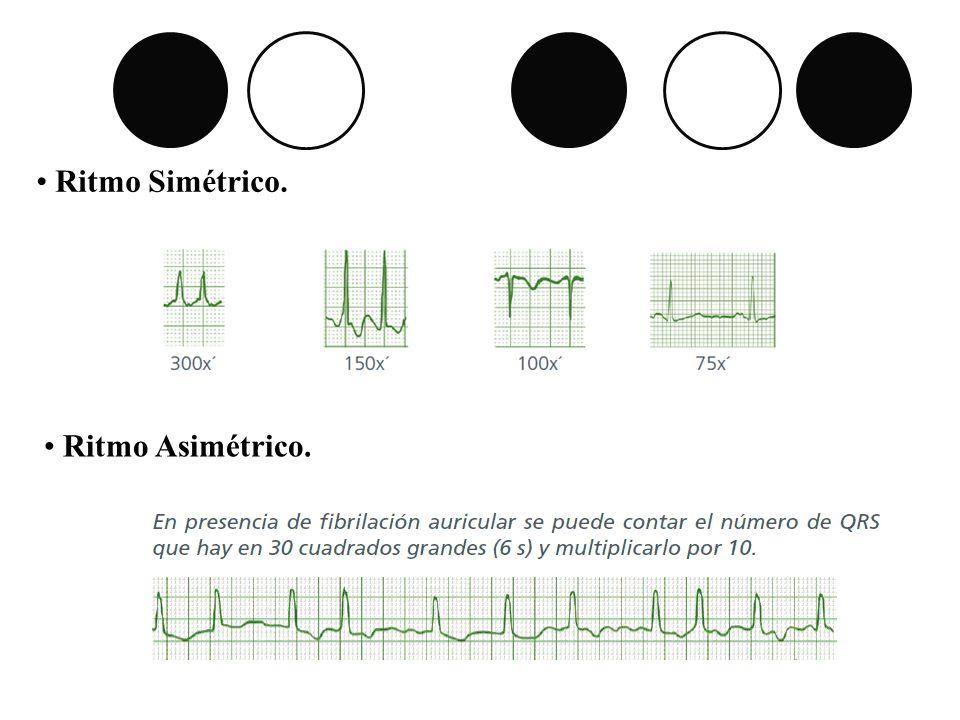 Ritmo Simétrico. Ritmo Asimétrico.