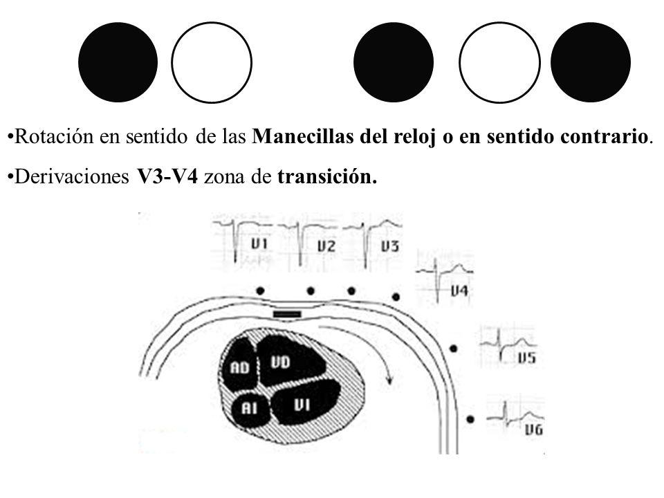Rotación en sentido de las Manecillas del reloj o en sentido contrario.