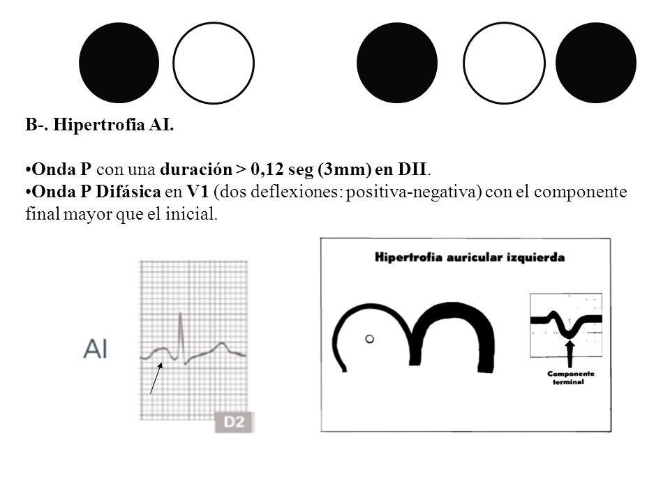 B-. Hipertrofia AI. Onda P con una duración > 0,12 seg (3mm) en DII.