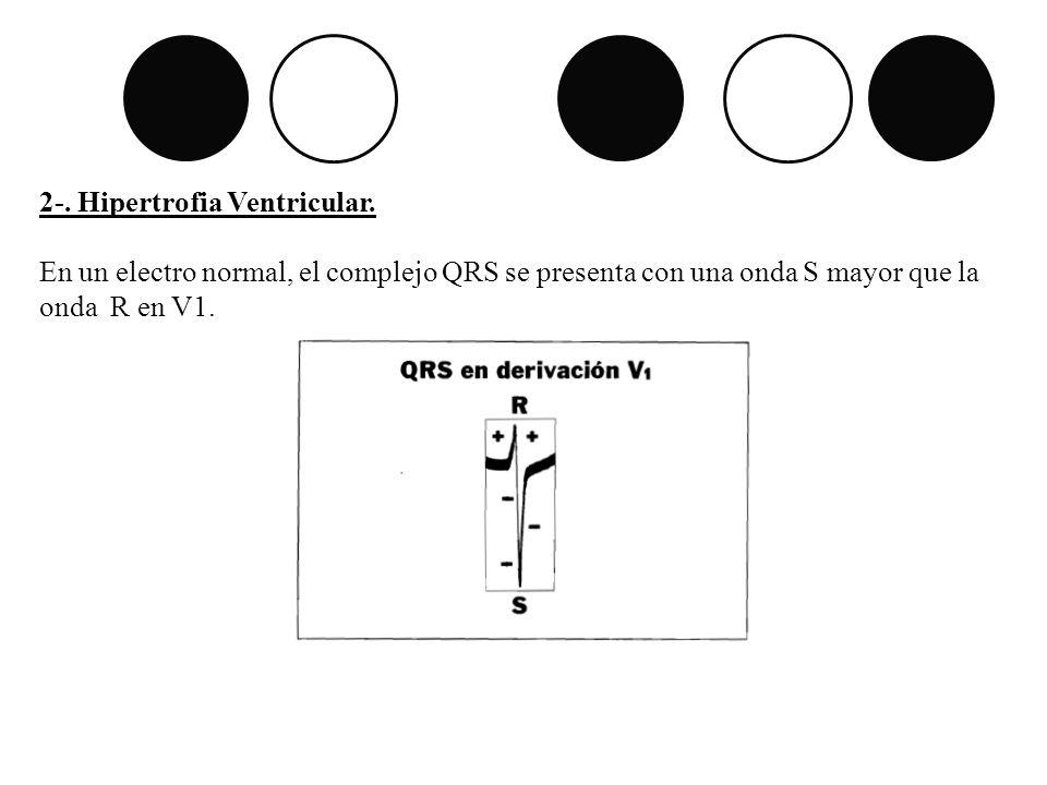 2-. Hipertrofia Ventricular.