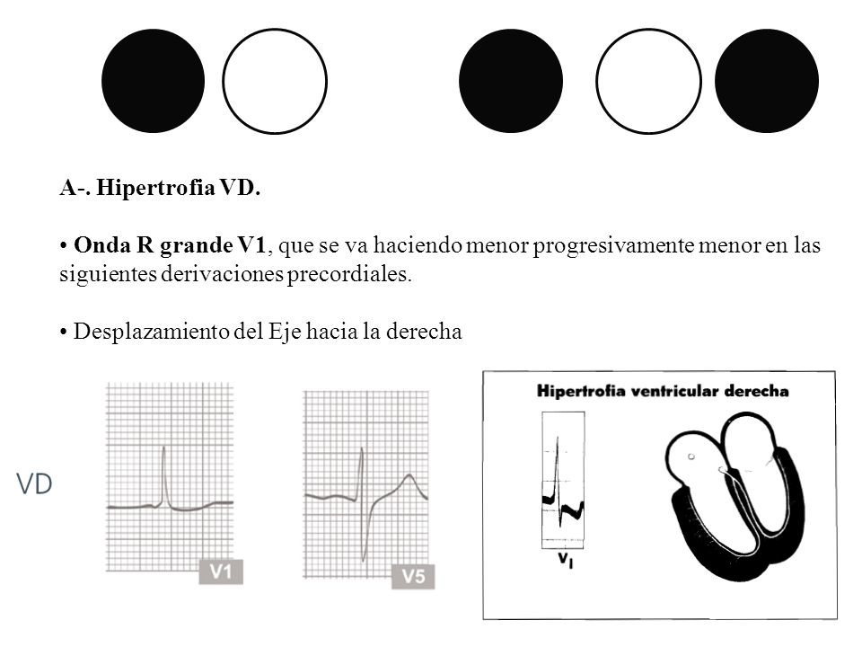 A-. Hipertrofia VD. Onda R grande V1, que se va haciendo menor progresivamente menor en las siguientes derivaciones precordiales.
