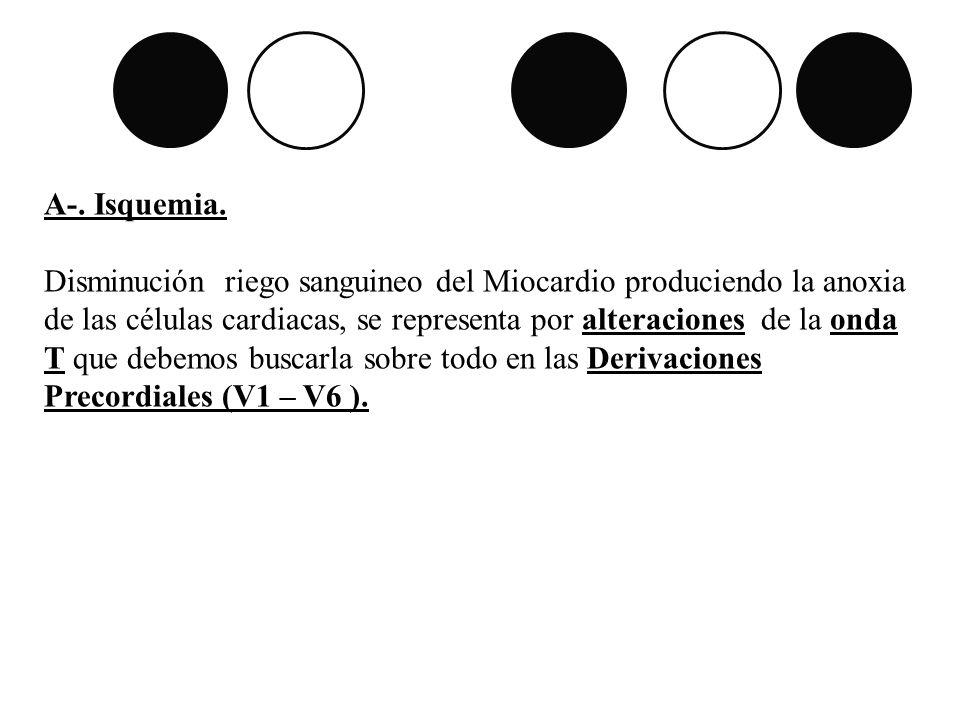 A-. Isquemia.