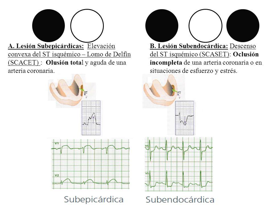 A. Lesión Subepicárdicas: Elevación convexa del ST isquémico – Lomo de Delfín (SCACET) : Olusión total y aguda de una arteria coronaria.