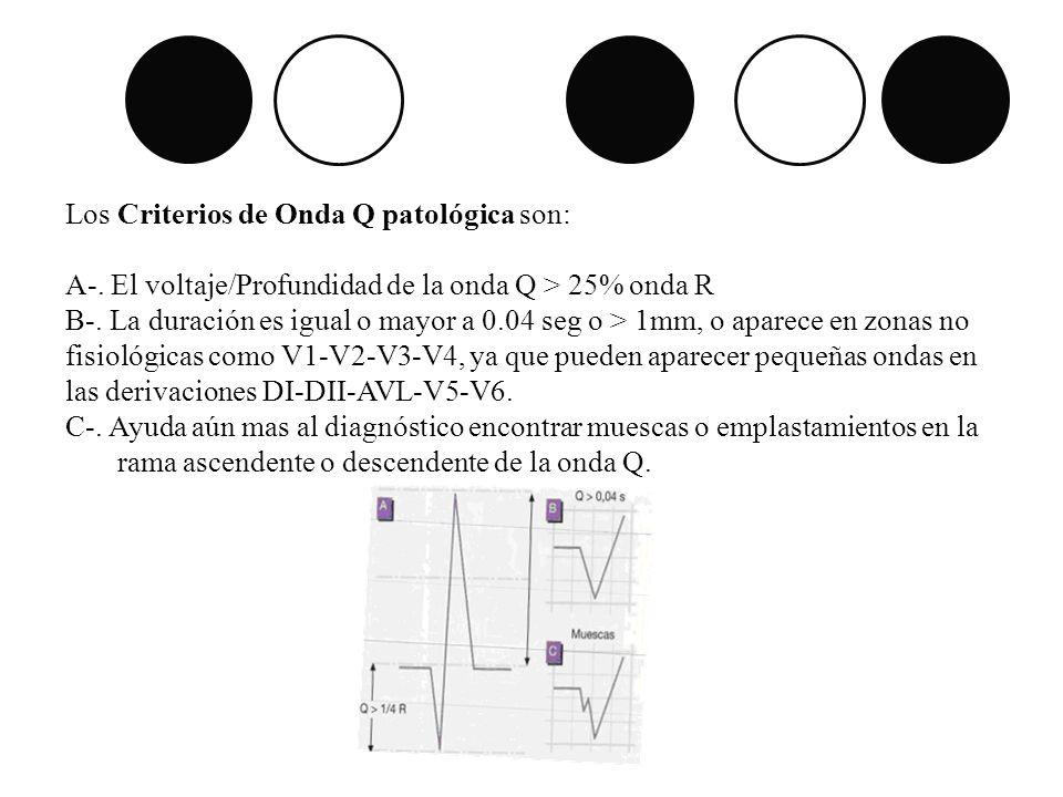Los Criterios de Onda Q patológica son: