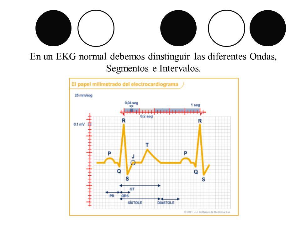 En un EKG normal debemos dinstinguir las diferentes Ondas, Segmentos e Intervalos.