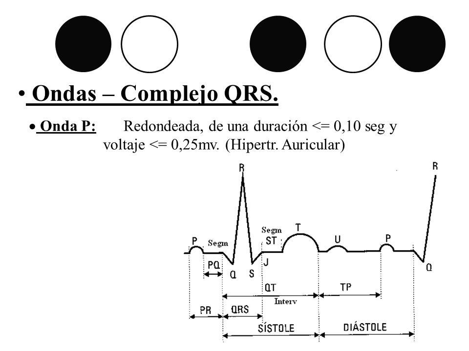 Ondas – Complejo QRS. Onda P: Redondeada, de una duración <= 0,10 seg y.