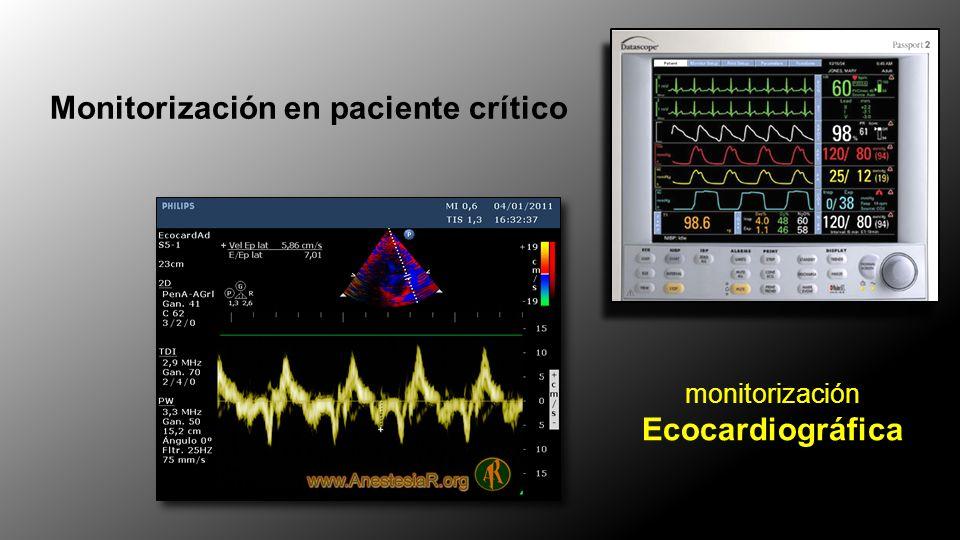 Monitorización en paciente crítico