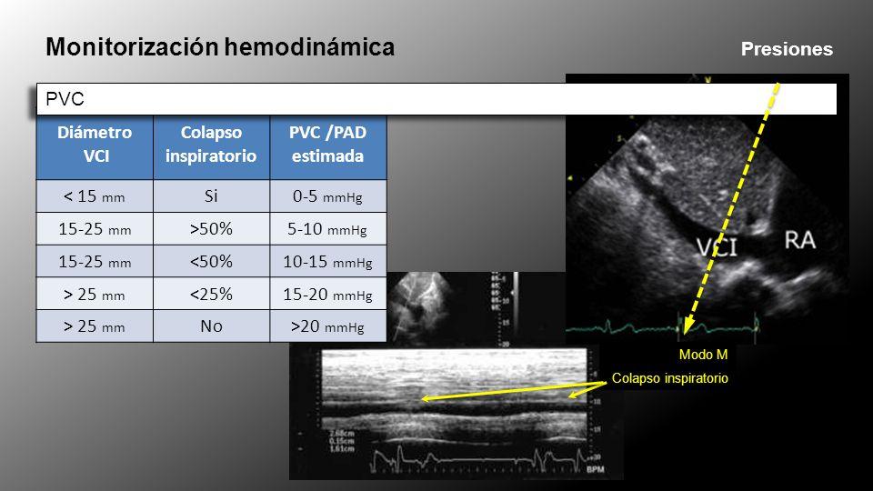 Monitorización hemodinámica Presiones