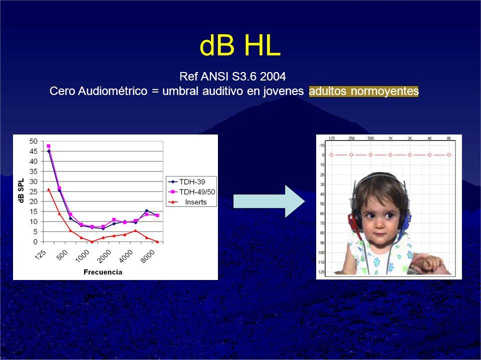 Cero Audiométrico = umbral auditivo en jovenes adultos normoyentes