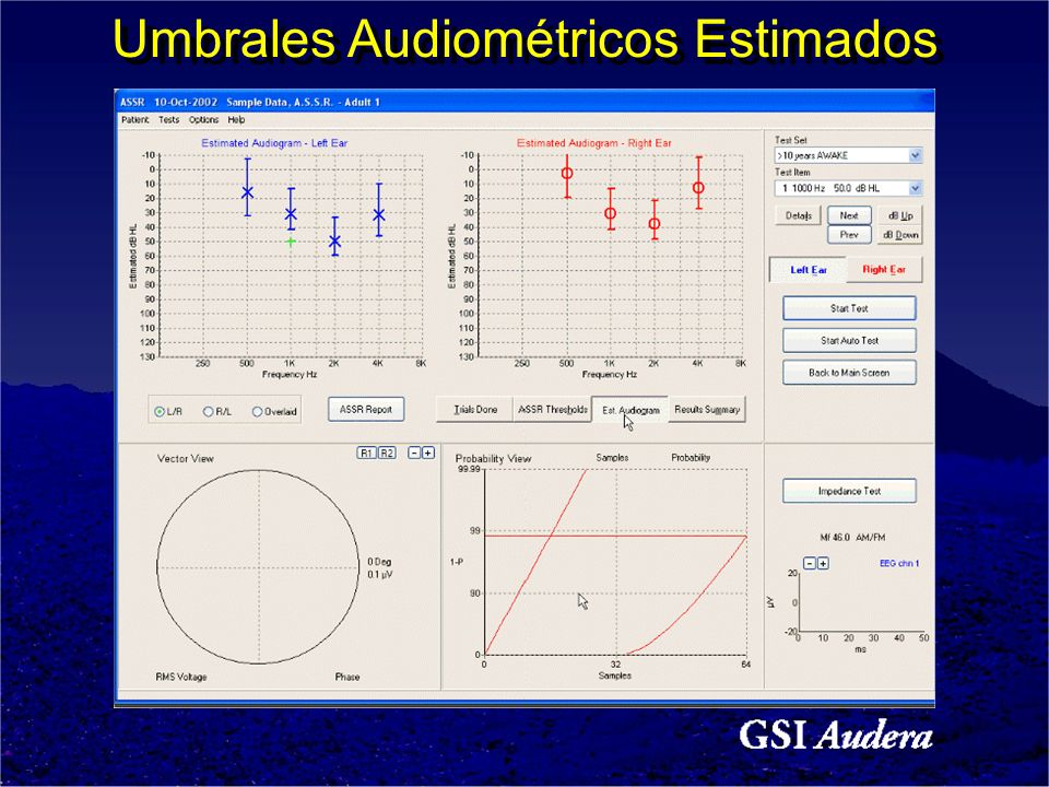 Umbrales Audiométricos Estimados