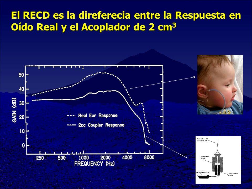 El RECD es la direferecia entre la Respuesta en Oído Real y el Acoplador de 2 cm3