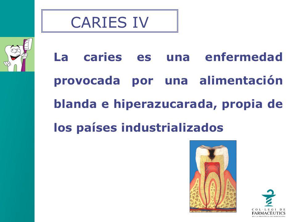 CARIES IV La caries es una enfermedad provocada por una alimentación blanda e hiperazucarada, propia de los países industrializados.