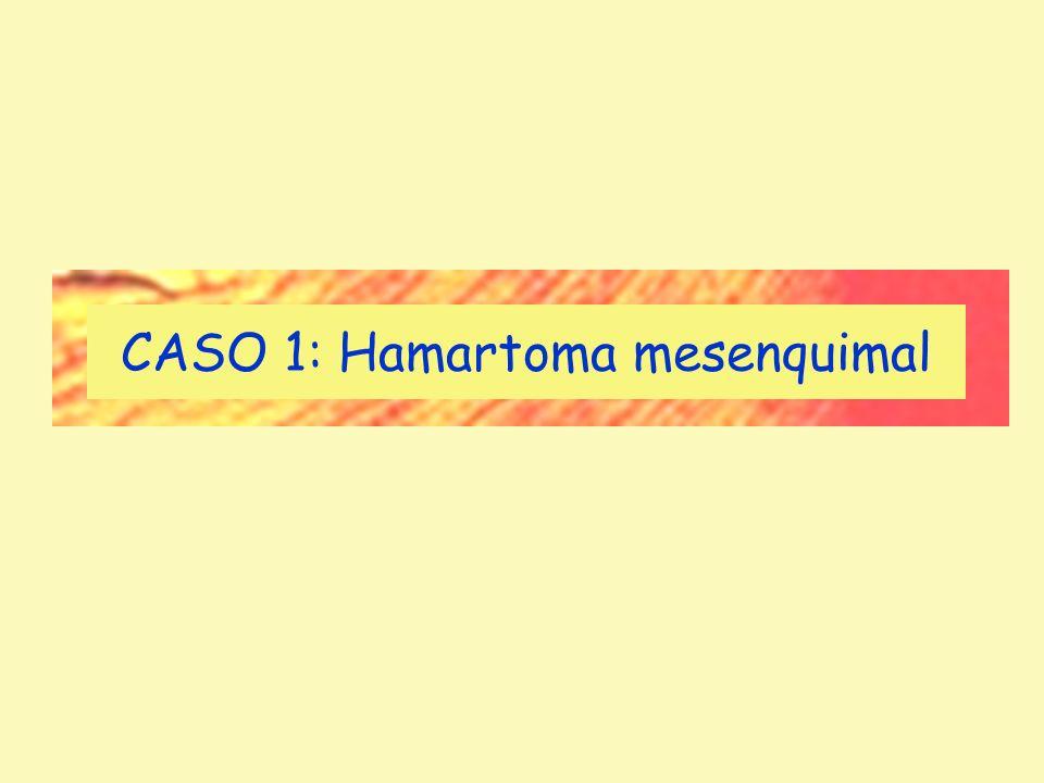 CASO 1: Hamartoma mesenquimal