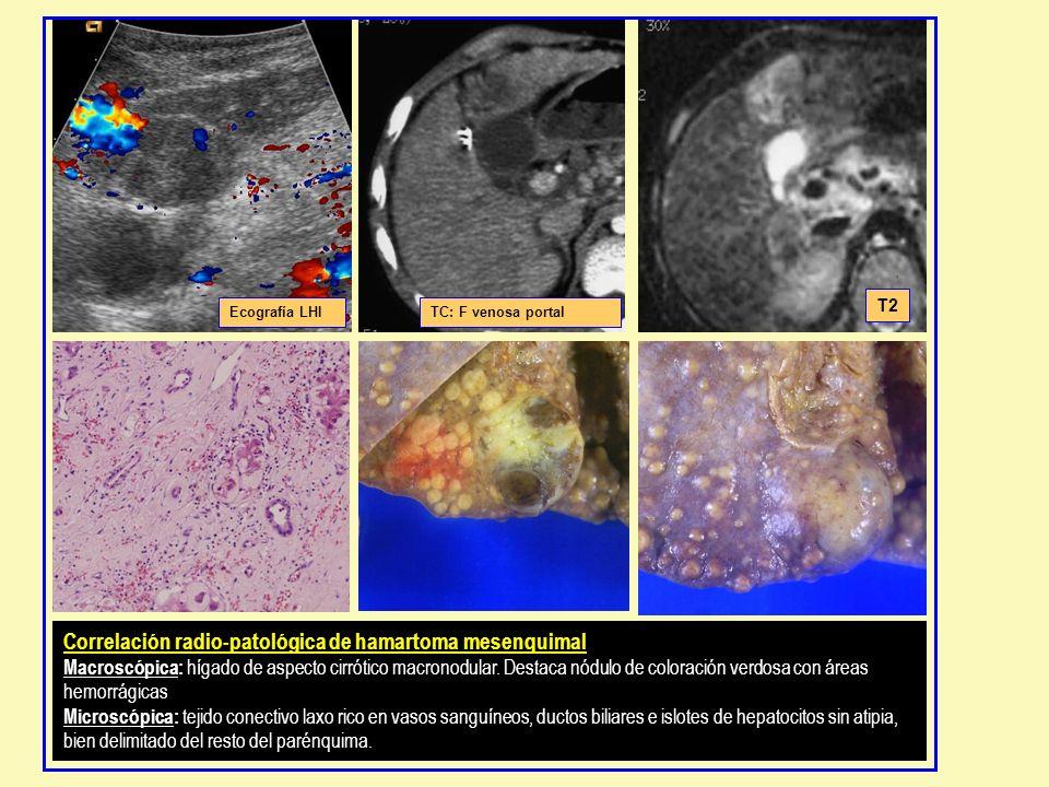 Correlación radio-patológica de hamartoma mesenquimal