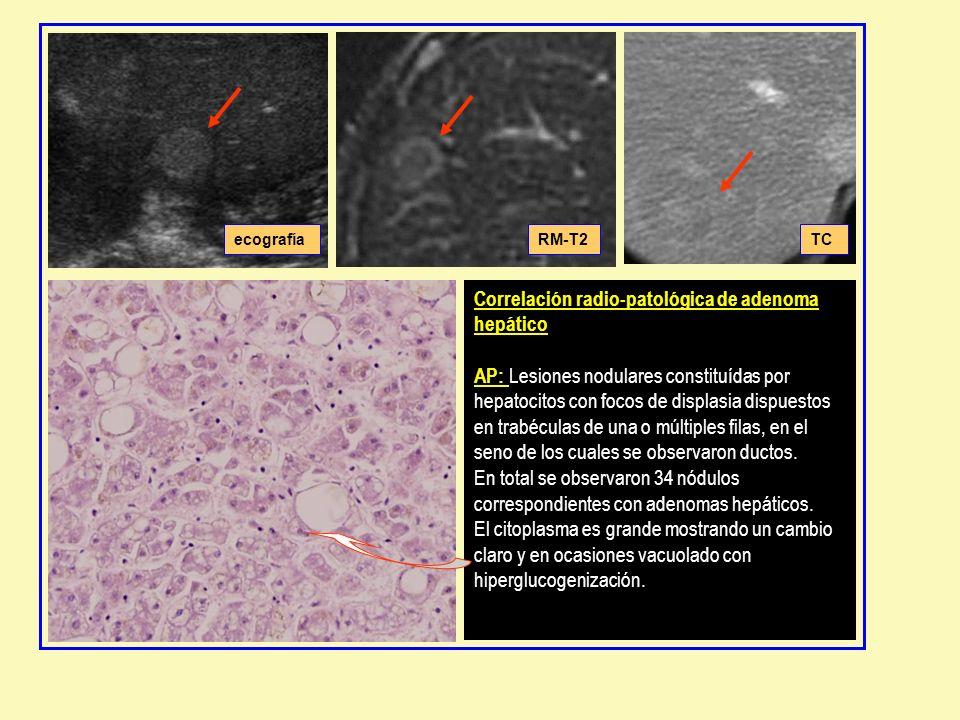 Correlación radio-patológica de adenoma hepático