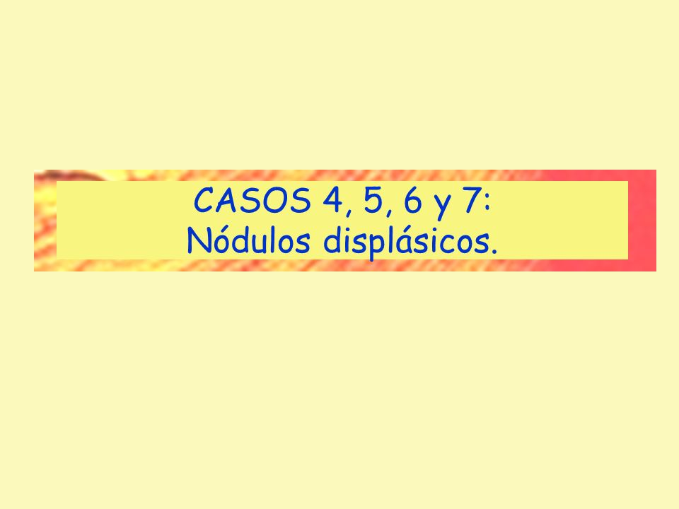 CASOS 4, 5, 6 y 7: Nódulos displásicos.