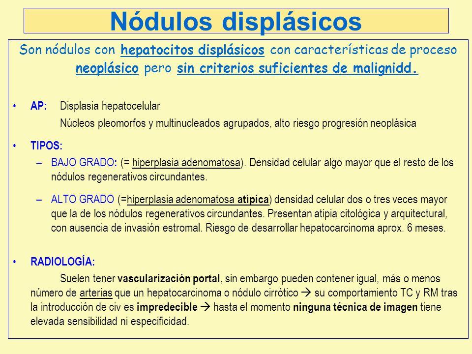 Nódulos displásicos Son nódulos con hepatocitos displásicos con características de proceso neoplásico pero sin criterios suficientes de malignidd.