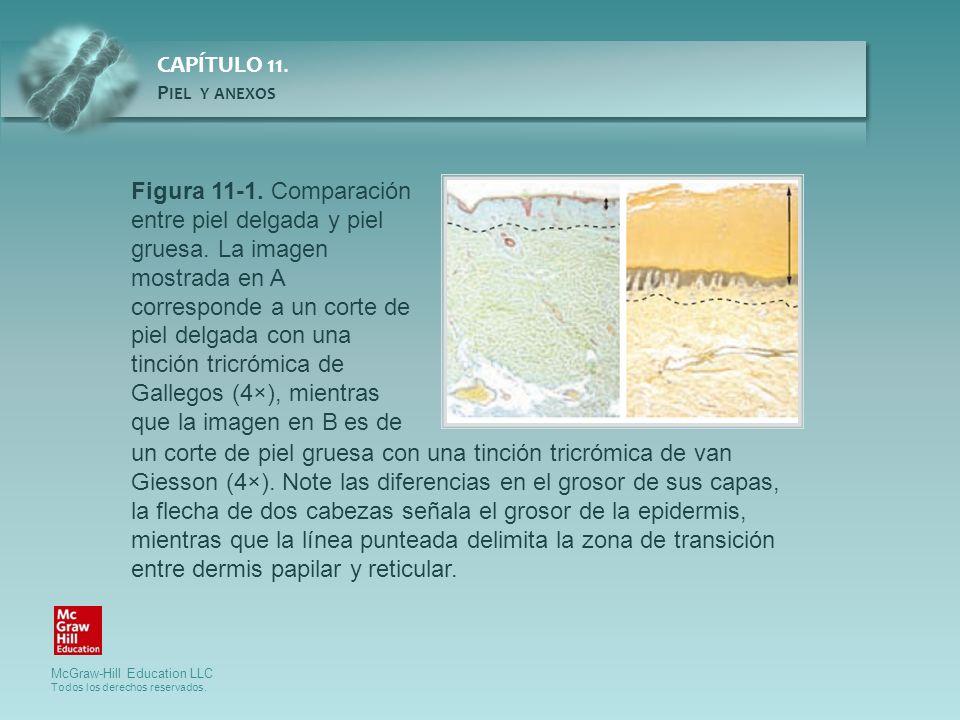 Figura 11-1. Comparación entre piel delgada y piel gruesa