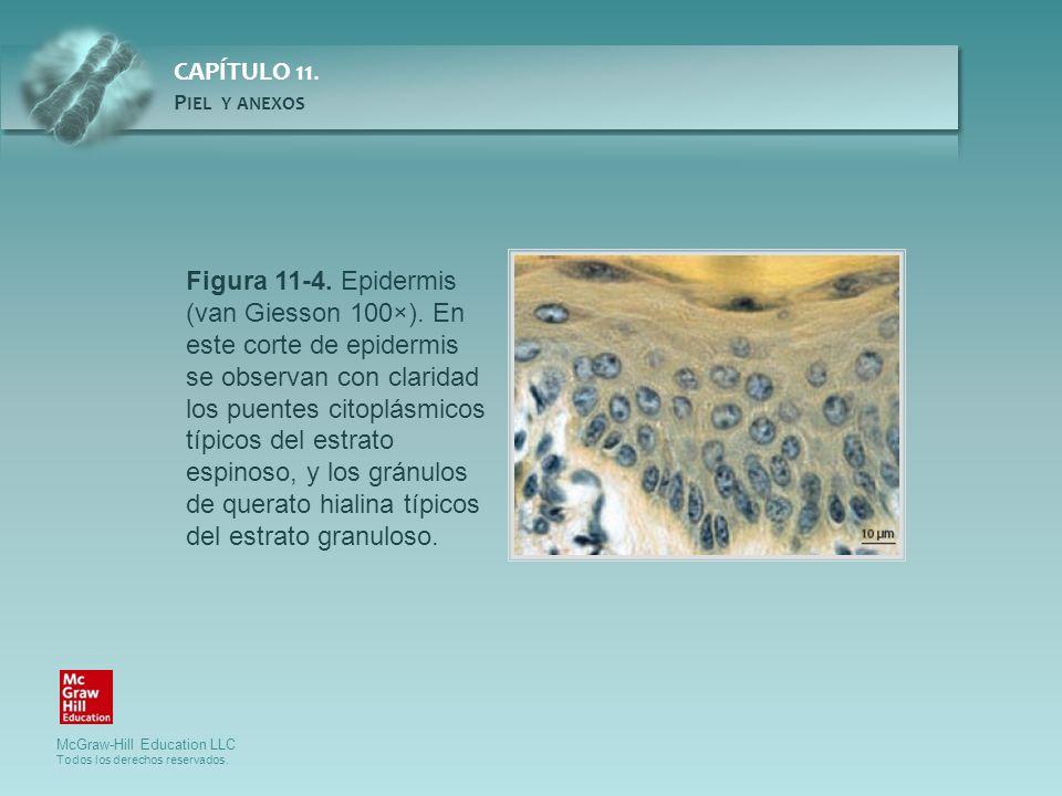 Figura 11-4. Epidermis (van Giesson 100×). En este corte de epidermis
