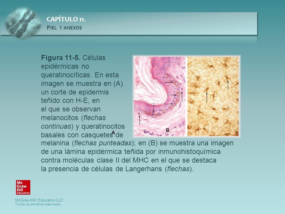 Figura 11-5. Células epidérmicas no queratinocíticas. En esta