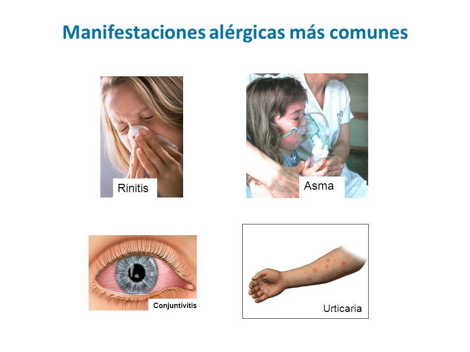 Manifestaciones alérgicas más comunes