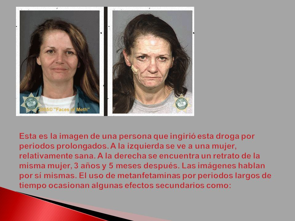 Esta es la imagen de una persona que ingirió esta droga por periodos prolongados.