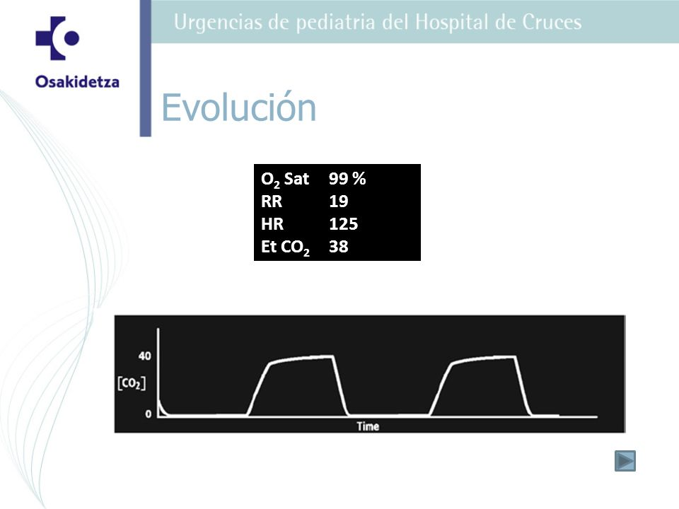 Evolución O2 Sat 99 % RR 19 HR 125 Et CO2 38