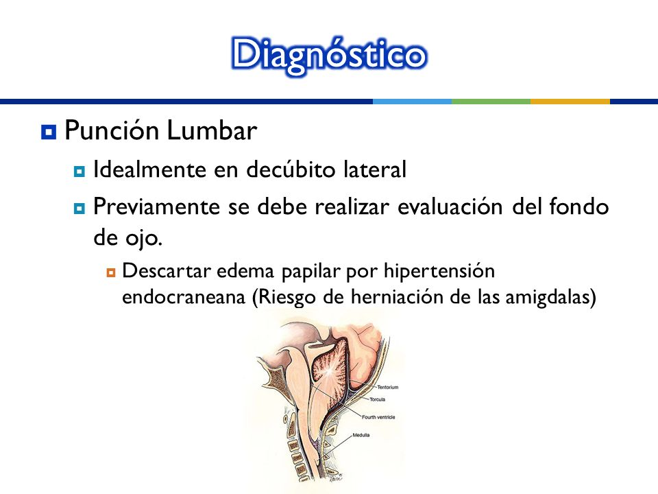 Diagnóstico Punción Lumbar Idealmente en decúbito lateral