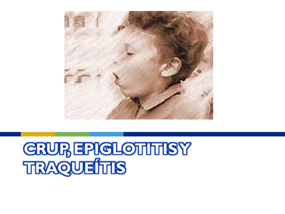 CRUP, EPIGLOTITIS Y TRAQUEÍTIS