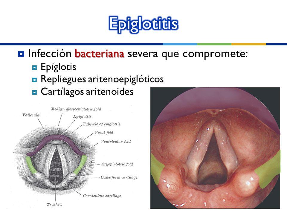 Epiglotitis Infección bacteriana severa que compromete: Epíglotis
