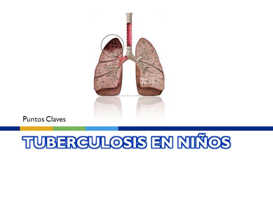Puntos Claves Tuberculosis en niños