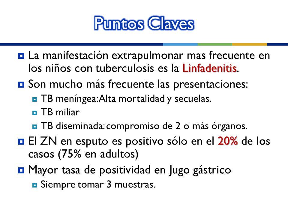Puntos Claves La manifestación extrapulmonar mas frecuente en los niños con tuberculosis es la Linfadenitis.
