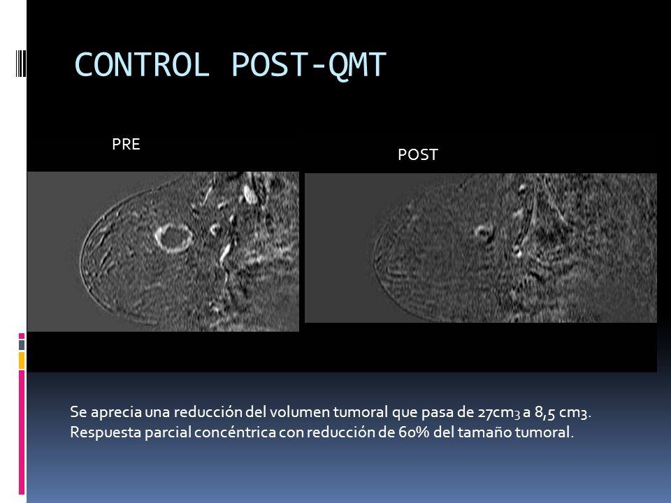 CONTROL POST-QMT PRE POST