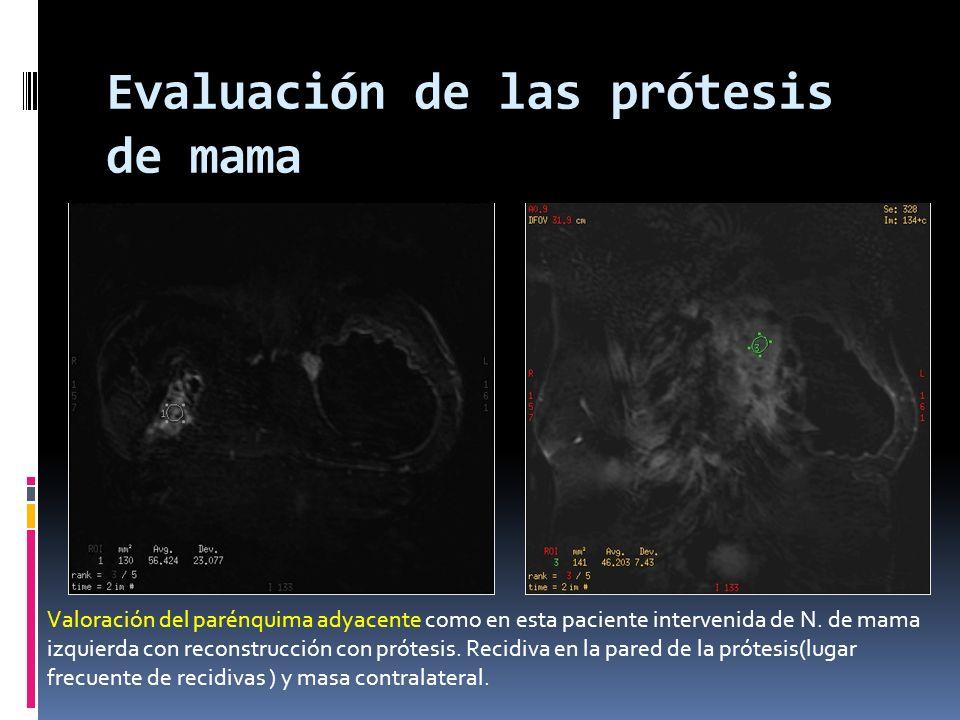Evaluación de las prótesis de mama