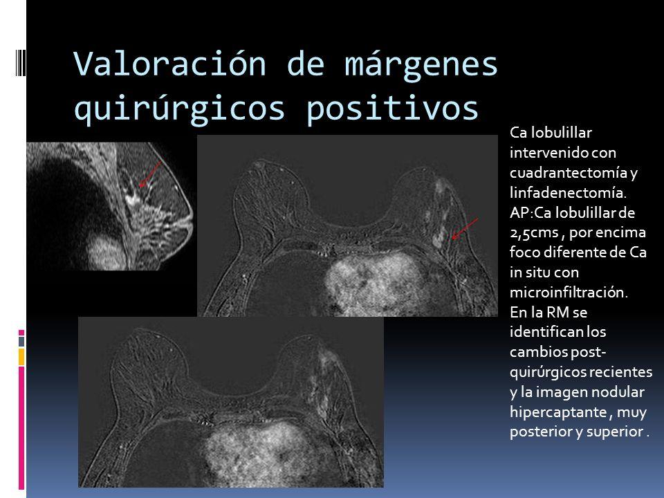 Valoración de márgenes quirúrgicos positivos