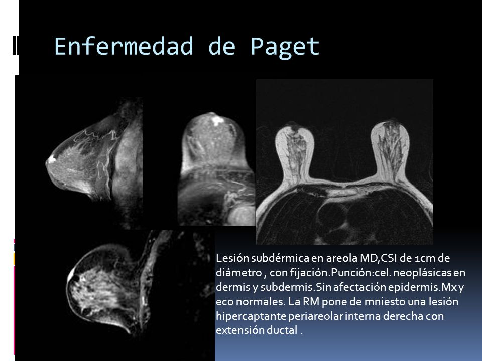 Enfermedad de Paget Lesión subdérmica en areola MD,CSI de 1cm de diámetro , con fijación.Punción:cel. neoplásicas en.