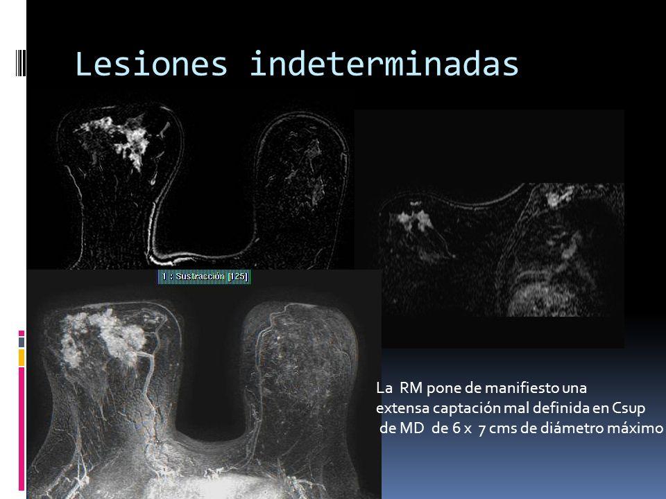 Lesiones indeterminadas